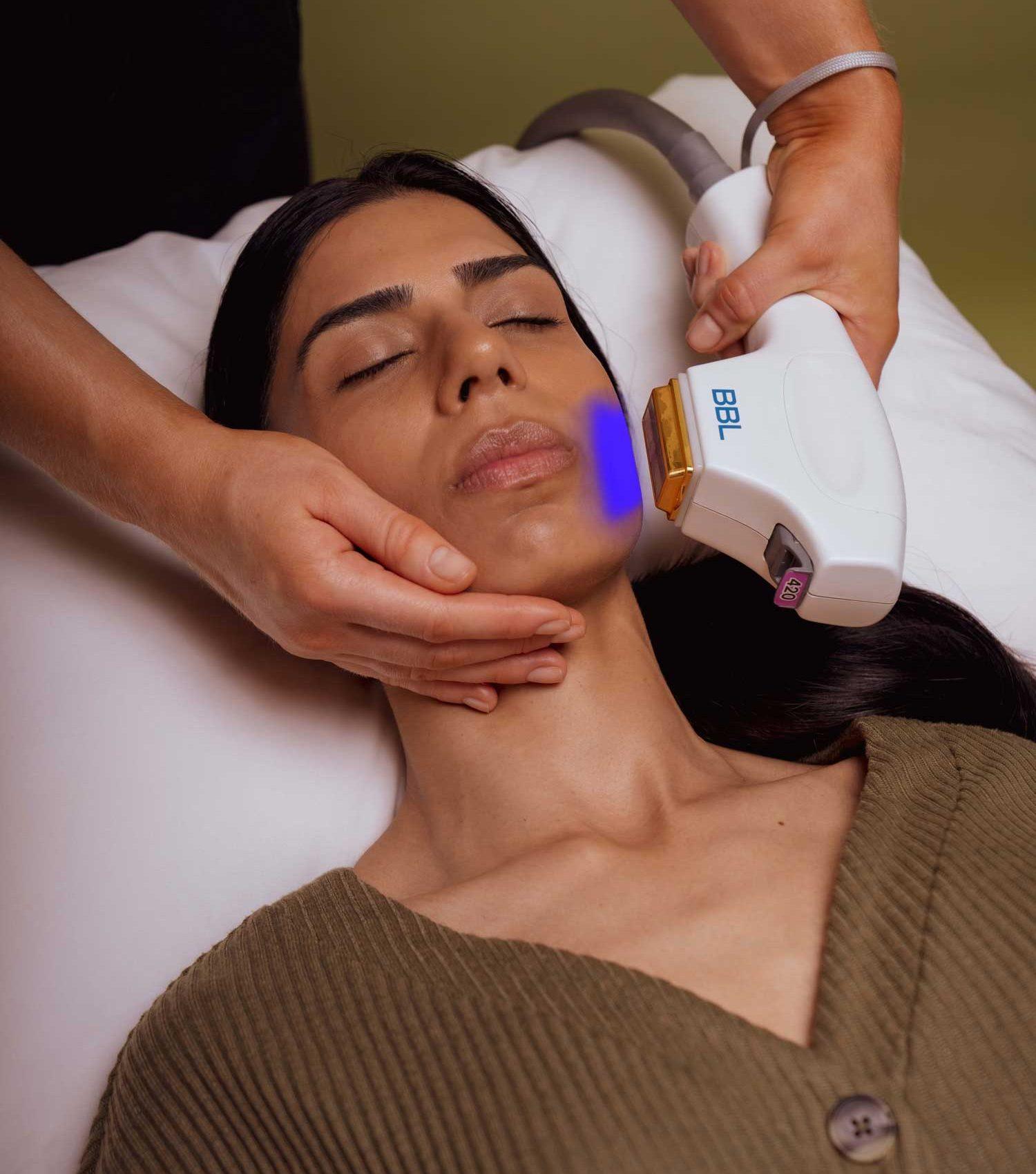 SKN-holistic-forever-clear-BBL-acne-treatment-Vancouver-1500x2250